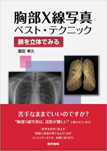 胸部X線写真 ベストテクニック~肺を立体でみる~